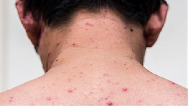Kamu Takut Vaksin, Emang Pas SD Enggak Pernah Ikut Imunisasi? (9218)