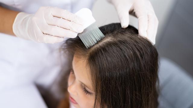 9 Masalah Rambut dan Kulit Kepala yang Bisa Terjadi pada Anak (104461)
