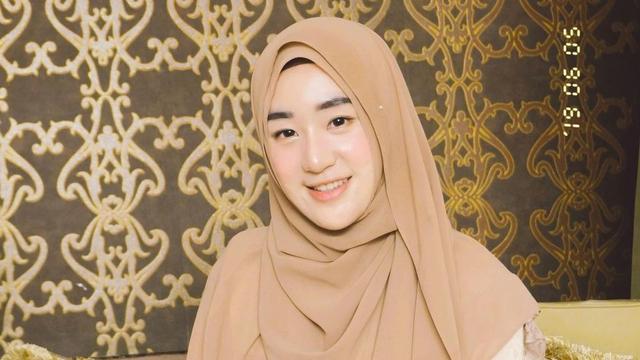 Tanggapan Larissa Chou Soal Dikhawatirkan Lepas Hijab Usai Cerai dari Alvin Faiz (228224)