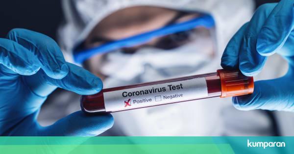 AS Mulai Ujikan Vaksin Virus Corona Terhadap Manus