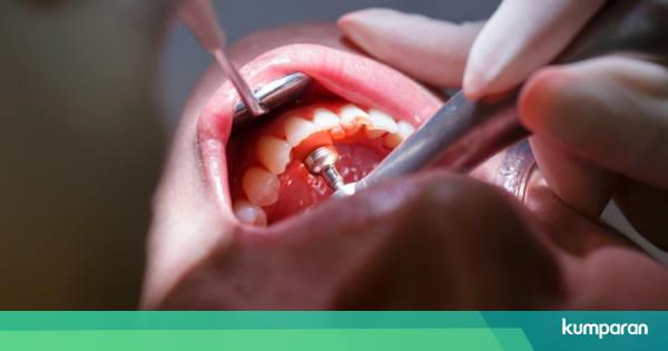 Kista Gigi Masalah Mulut Yang Muncul Akibat Gigi Berlubang Kumparan Com