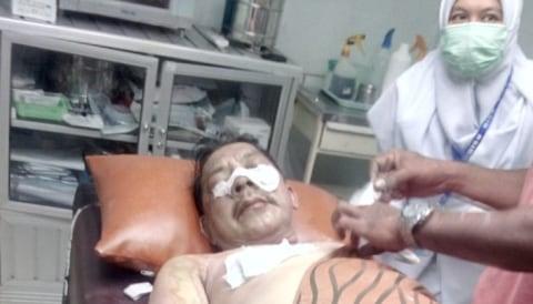 Kadivpas Kalsel, Asep Syarifudin, diserang menggunakan air keras.