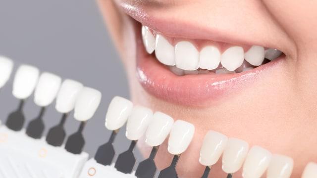 Bolehkah Ibu Hamil Memutihkan Gigi  - kumparan.com f1e1206168